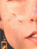 acne scar treatment in nyc