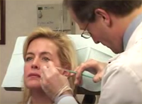 Botox NYC for Crows feet