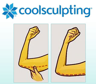 freeze upper arm fat