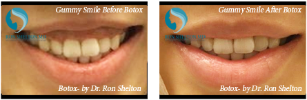 Botox NYC - Gummy Smile Before After Botox