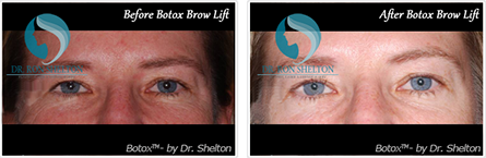 Botox NYC - Before and after case 8