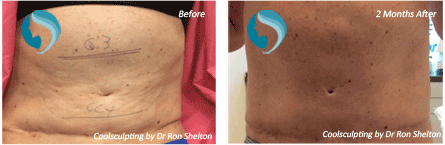 CoolSculpting NYC - Before and after case 11