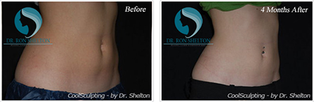 CoolSculpting NYC - Before and after case 4