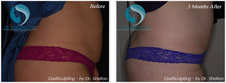 CoolSculpting NYC - Before and after case 6