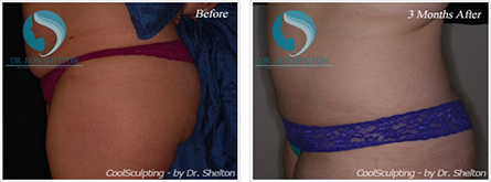 CoolSculpting NYC - Before and after case 7