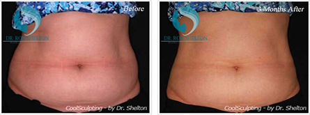 CoolSculpting NYC - Before and after case 8