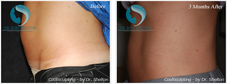 CoolSculpting NYC - Before and after case 9