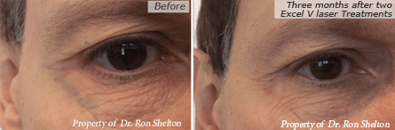 Facial Veins NYC - Excel V laser before and after in nyc