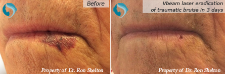 Facial Veins NYC - Vbeam laser eradication of traumatic bruise in three days
