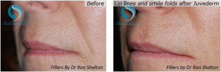 Fillers NYC - Lip lines and smile folds after Juvederm