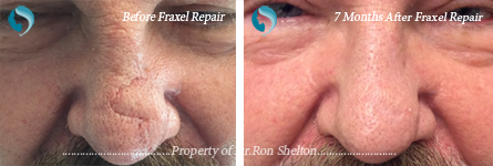 Fraxel NYC - 7 months after Fractional Repair (CO2) laser resurfacing of Mohs scar