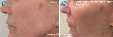 Fraxel NYC - 26 days after fraxel laser resurfacing in NYC