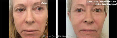 Fat Injections NYC - After - Halo / Profractional and Sciton Laser Micropeel