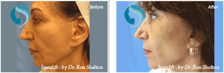 Non Surgical Facelift NYC - Before and after case 3