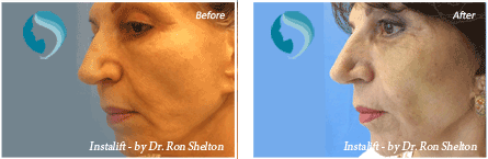 Non Surgical Facelift NYC - Before and after case 2