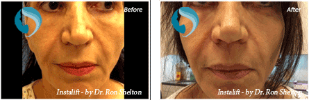 Non Surgical Facelift NYC - Before and after case 1
