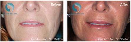 Juvederm NYC - Before and after case 1