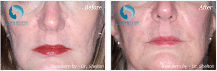 Juvederm NYC - Before and after case 2