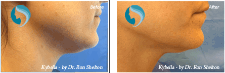 Kybella Injections NYC - Before and after case 2