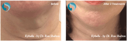 Kybella Injections NYC - Before and after case 3