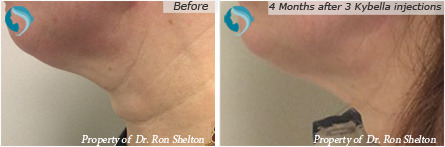 Kybella Injections NYC - 4 months after 3 kybella injections