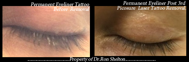 Picosure laser tattoo removal nyc for Post laser tattoo removal