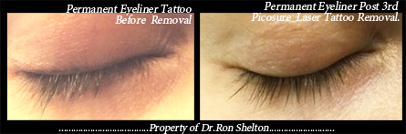PicoSure Laser Tattoo Removal NYC - Post 3rd Pico Sure Laser Tattoo Removal