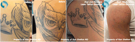 PicoSure Laser Tattoo Removal NYC - Post 2nd and 7th Pico Sure Laser Tattoo Removal