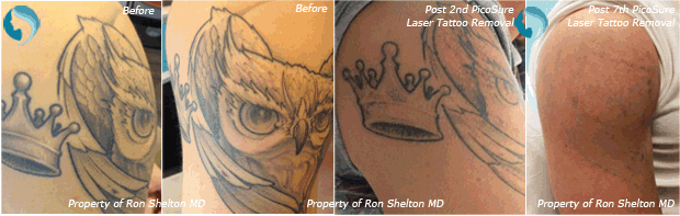 Before and after Picosure Laser Tattoo Removal