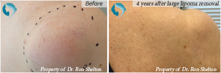 Before and after photo of Lipoma surgery
