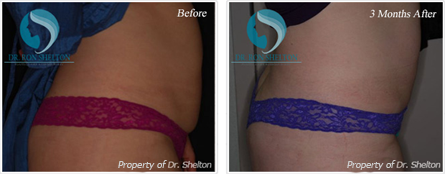 Liposuction NYC - Before and after case 6