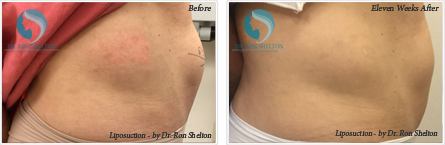Liposuction NYC - Before and after case 3
