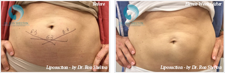 Liposuction NYC - Before and after case 2