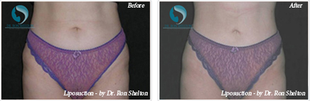 Liposuction NYC - Before and after case 1