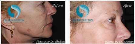 Portrait plasma skin resurfacing and rejuvenating NYC - Before and after case 4