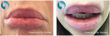 Facial Veins NYC - Facial redness before and after in nyc