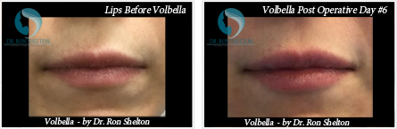 Volbella Filler Lips in NYC and Manhattan - Before and after case 1