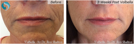 Volbella Filler Lips in NYC and Manhattan - 3 weeks post operative volbella