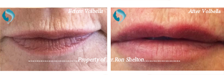 Volbella Filler Lips in NYC and Manhattan - post operative volbella