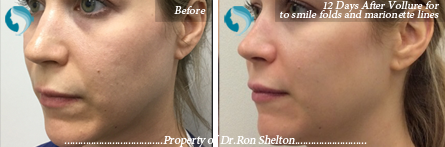 Vollure NYC smile line fillers - 12 Days After Vollure to smile folds and marionette lines