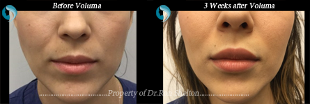 Voluma NYC - 3 weeks post Juvederm