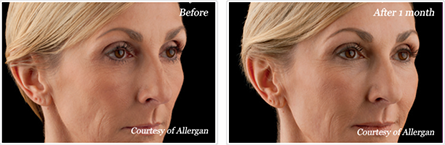 Voluma NYC - Before and after case 5
