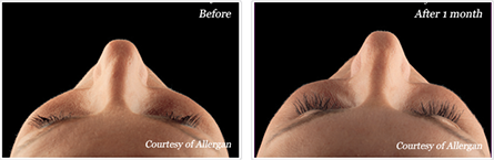 Voluma NYC - Before and after case 4