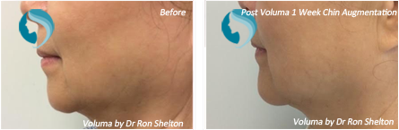 Voluma NYC - Before and after case 7