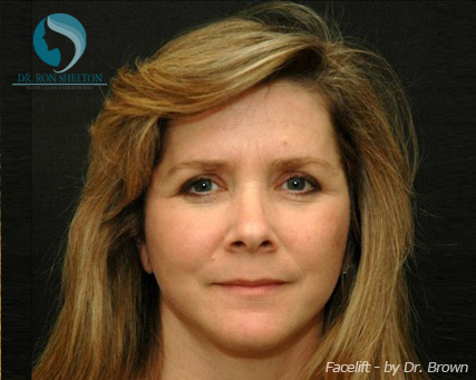 Face Lift New York City Safe And Effective Face Lift