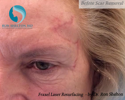 Fraxel New York City - Before Scar Removal
