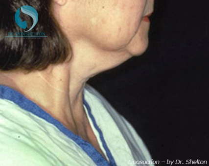 Treating Double Chin Fat Neck Turkey Neck with CoolSculpting Mini And NYC - Before Case 8