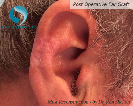 Mohs reconstruction New York - Post Operative Ear Graft