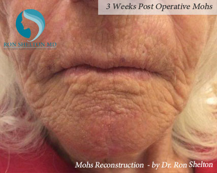 Mohs reconstruction New York - Post Operative 7 weeks