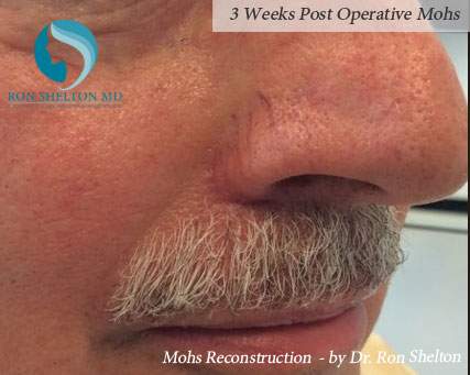 Mohs reconstruction New York - Post Operative 3 weeks